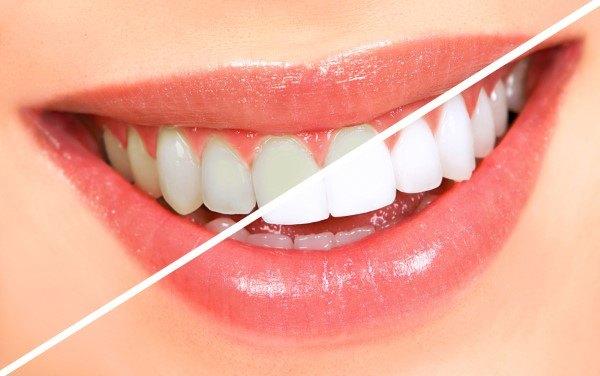 تجميل الأسنان في تركيا